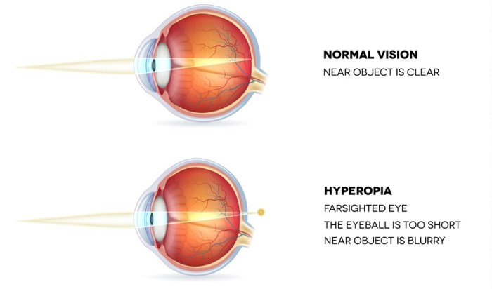 the difference between hyperopia and normal vision