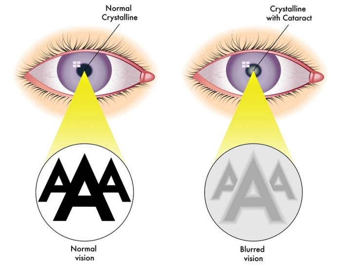 normal crystalline versus crystalline with cataract