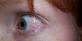 Sunburn Eyes Treatment and How to Prevent the Problem