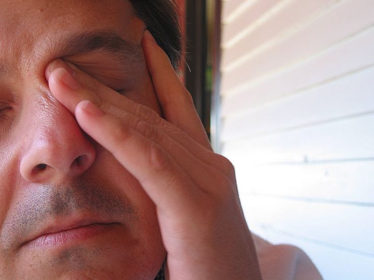 man scratching his eye