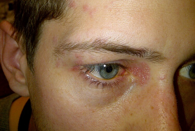 man with herpes zoster