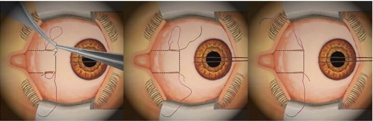 Strabismus surgery suture