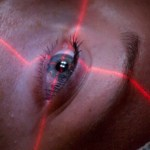 9 Corneal Neovascularization Treatments: Surgical and Non-Surgical Options
