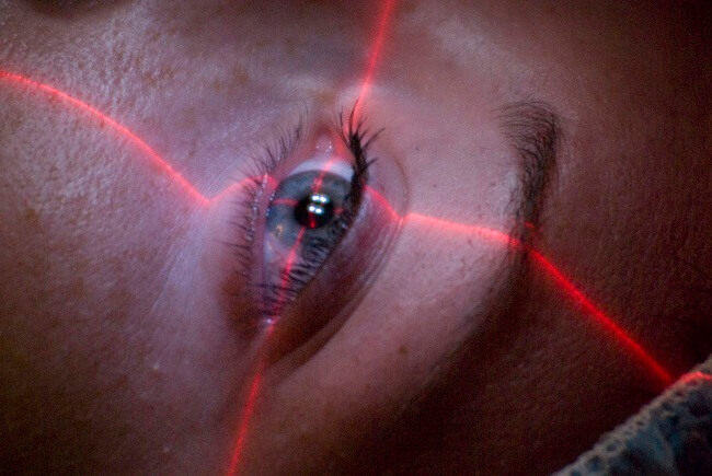 laser, corneal neovascularization treatment