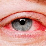 How to Clear Red Eyes: 8 Things You Can Do to Reduce Redness