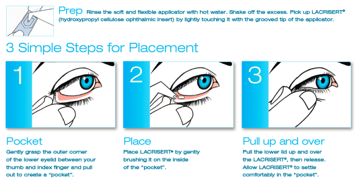 how to treat dry eyes without eye drops with Lacrisert