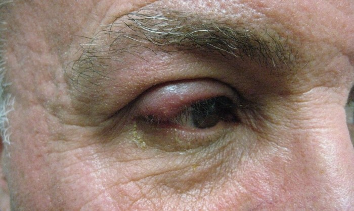 Eyes of a person suffering from Ocular Rosacea