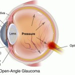 The 4 Main Types of Glaucoma Explained