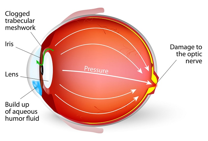 Normal-Tension Glaucoma