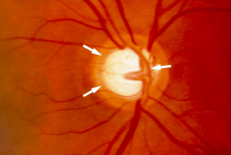 Arrows Pointing to Central Cupping or Hole in the Optic Nerve