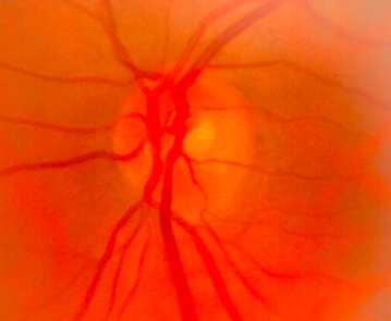 Normal Optic Nerve with Small Central Cup-to-Disc and Glaucoma