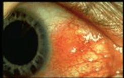 arthritis and the eye
