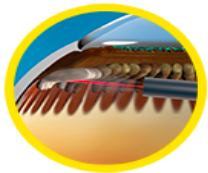 ECP and glaucoma