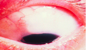 eye in Trabeculectomy