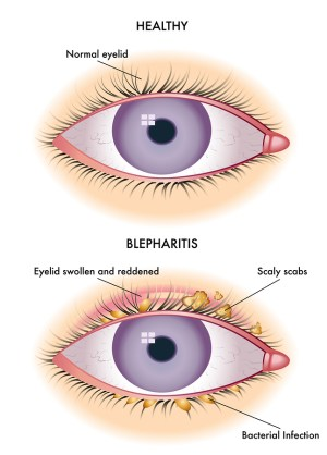 blepharitis and dry eye syndrome