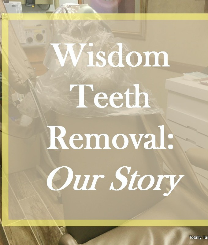 Wisdom Teeth Removal: Our Story