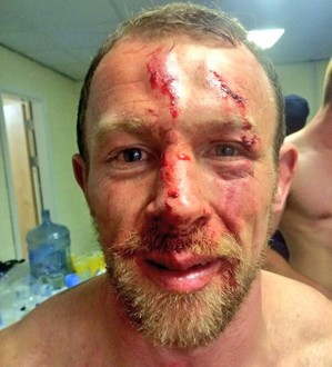 Higham posted this image of his cut face to his Twitter account shortly after the Wigan game. ©Twitter