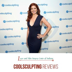 coolsculpting debra messing