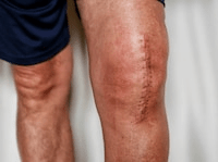Knee Replacement Scar - Scar & Injury Photography
