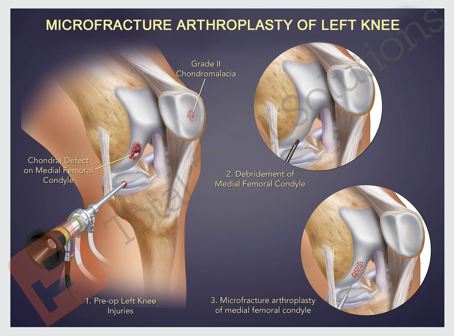 Total Trial Solutions - Left Knee Arthroscopic Surgery