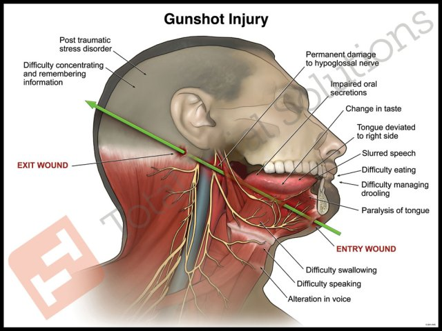 Total Trial Solutions - Gunshot Injury Wound
