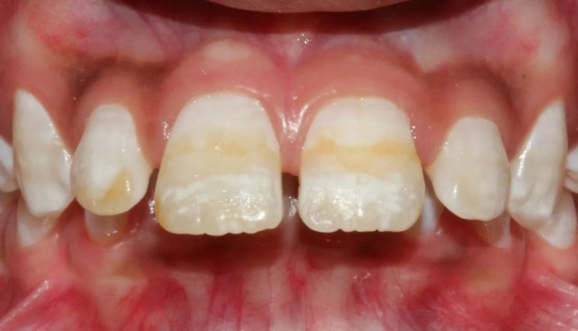 fumatul conduce la instalarea petelor maronii pe dinti