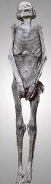 Body of Unknown Man 'E'