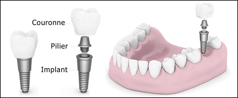implant-pieces