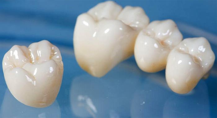 couronne-dentaire-zircone