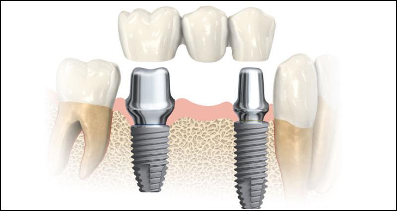 Couronne dentaire sur implant