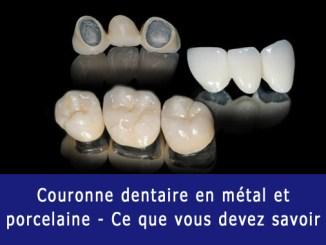Couronne dentaire en PFM