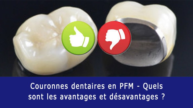 Couronnes dentaires PFM avantages et inconvénients