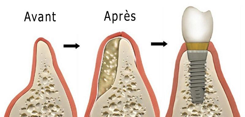 etapes-greffe-osseuse