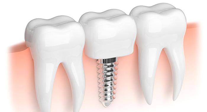 implant-risque