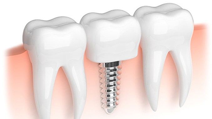 Implant dentaire risque