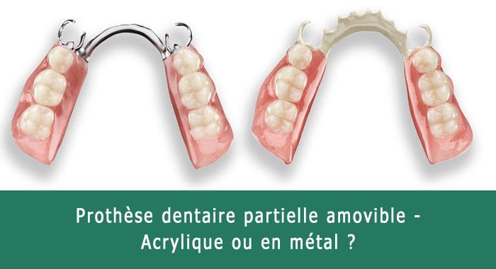 prothese-dentaire-partielle