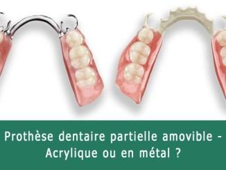 Prothèse dentaire partielle