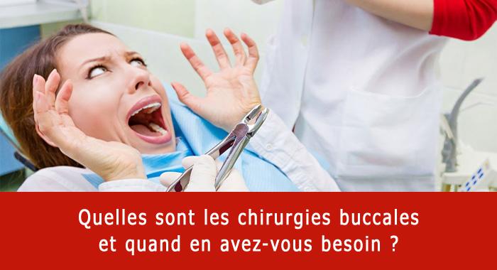 chirurgies-buccales
