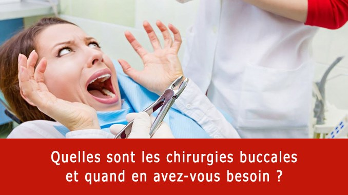 Chirurgie buccale