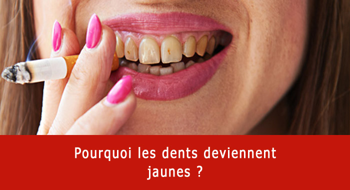 dents-jaunes