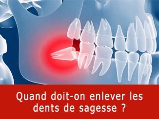 Quand enlever les dents de sagesse ?