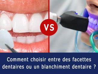 Facette dentaire ou blanchiment