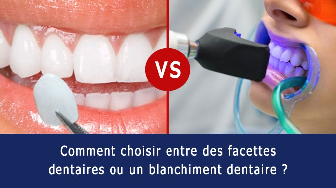 Facette dentaire ou blanchiment