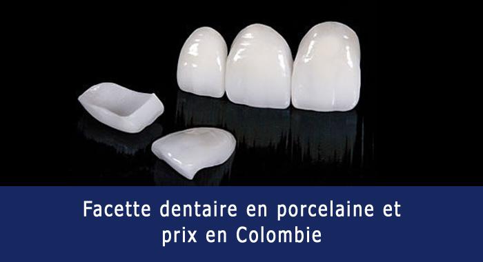 facette-porcelaine