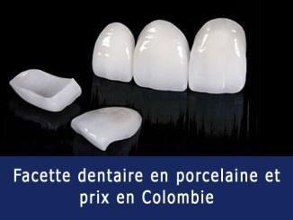 Facette dentaire en porcelaine