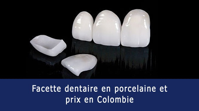 Facette dentaire en porcelaine