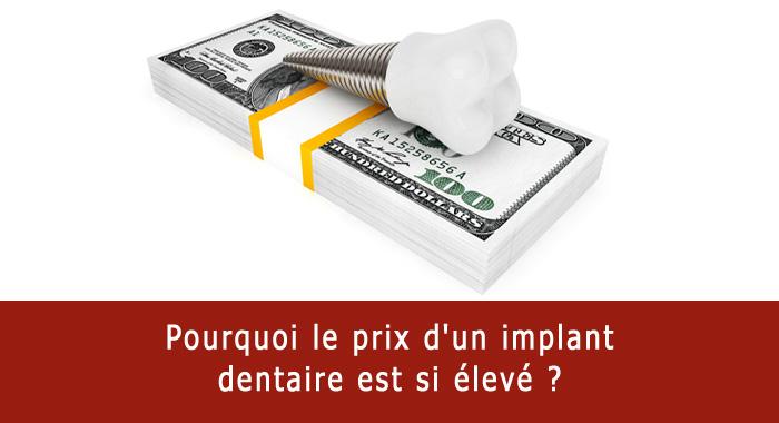 prix-implant