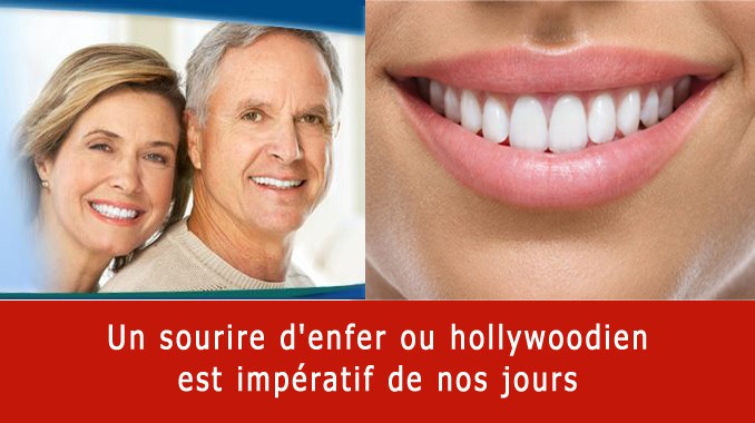 Sourire d'enfer ou hollywoodien