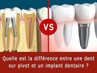 Dent sur pivot