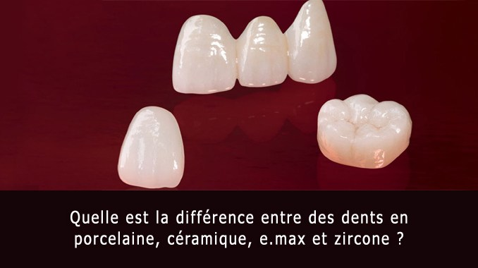 Dent en porcelaine et zircone